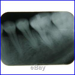 60W Digital Dental Portable Mobile X-Ray Image Unit Machine System Equipment New