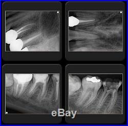 Portable Handheld X-RAY Dental System FDA. ZEN-PX2. High Tech Equip of Genoray